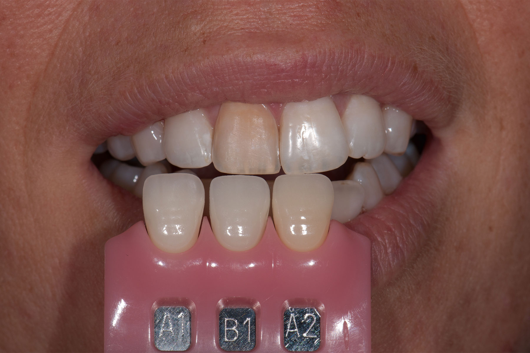 WOW! Miranskij - dentalnetworx.eu