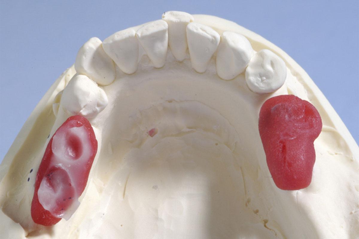Anwendung als Bissträger bei Implantaten