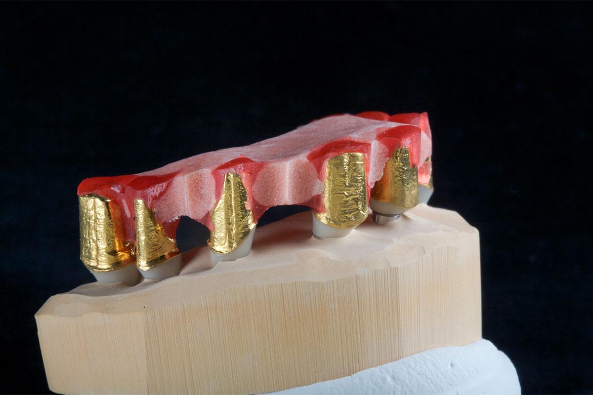Zur Herstellung eines Modells zur Verklebung einer Konusarbeit auf Implantaten