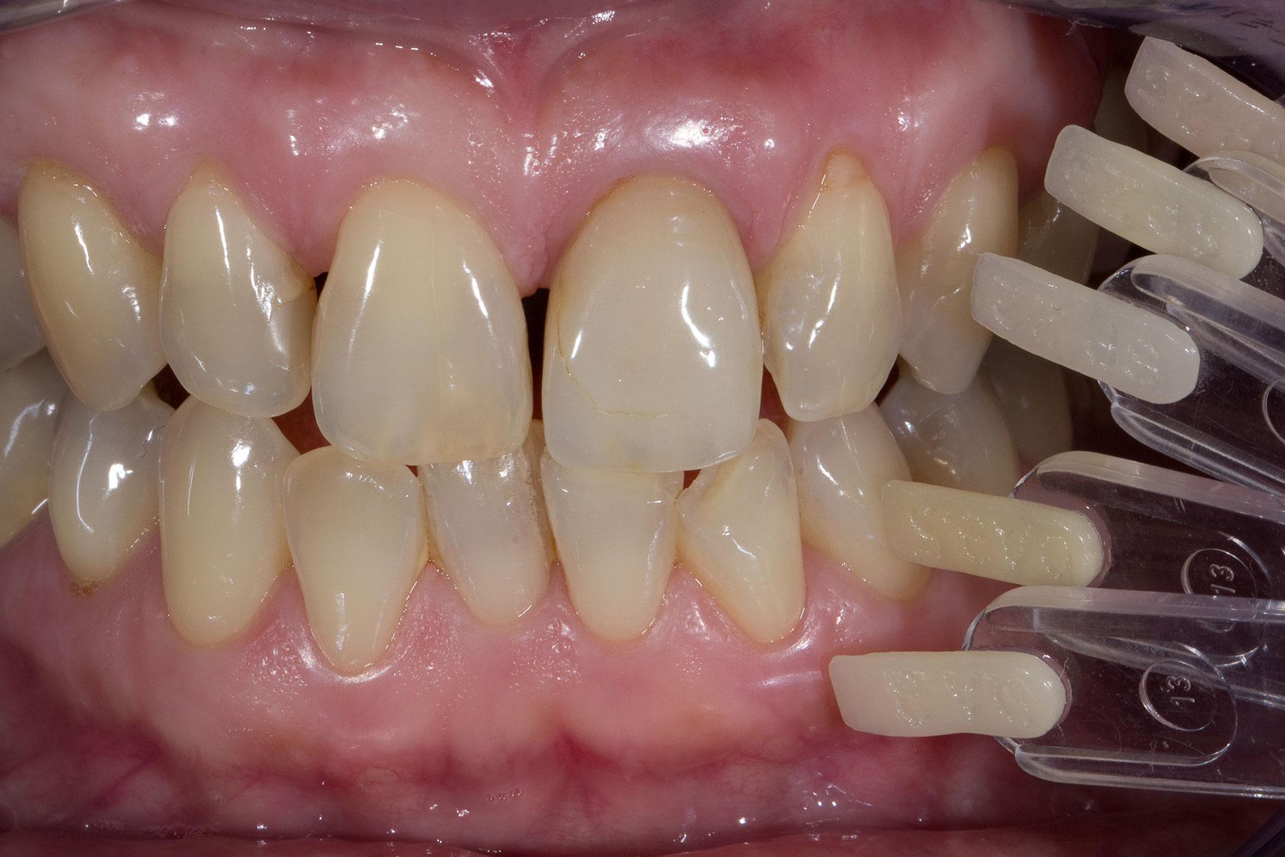 Abb. 4 Dentinfarben werden bestimmt